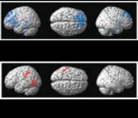 NeuronalActivity